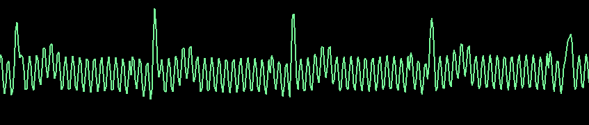 Electrical_Interference.PNG