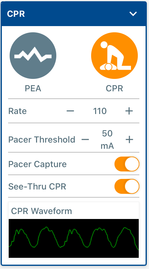 CPR_and_Pacing_Controls.PNG