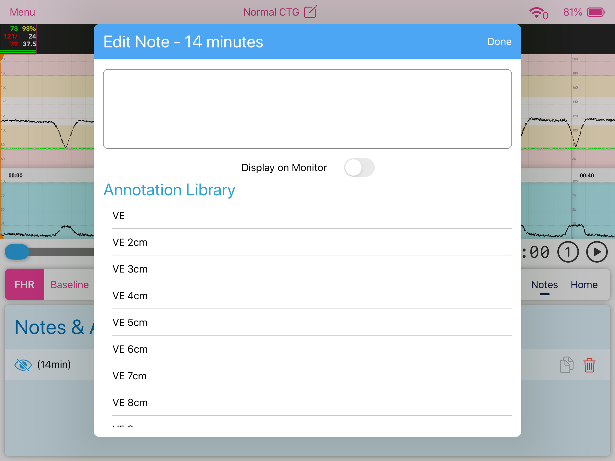 Facilitator_Notes_Add.PNG
