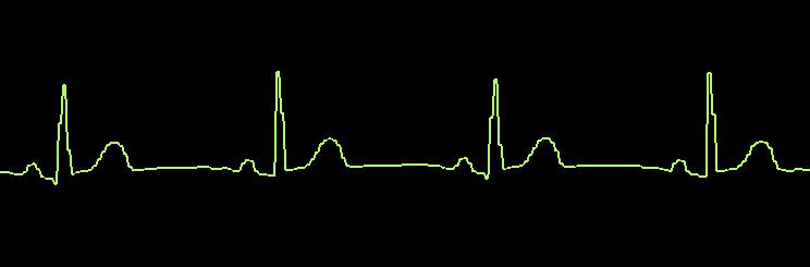 Waveform_smoothing_off.PNG