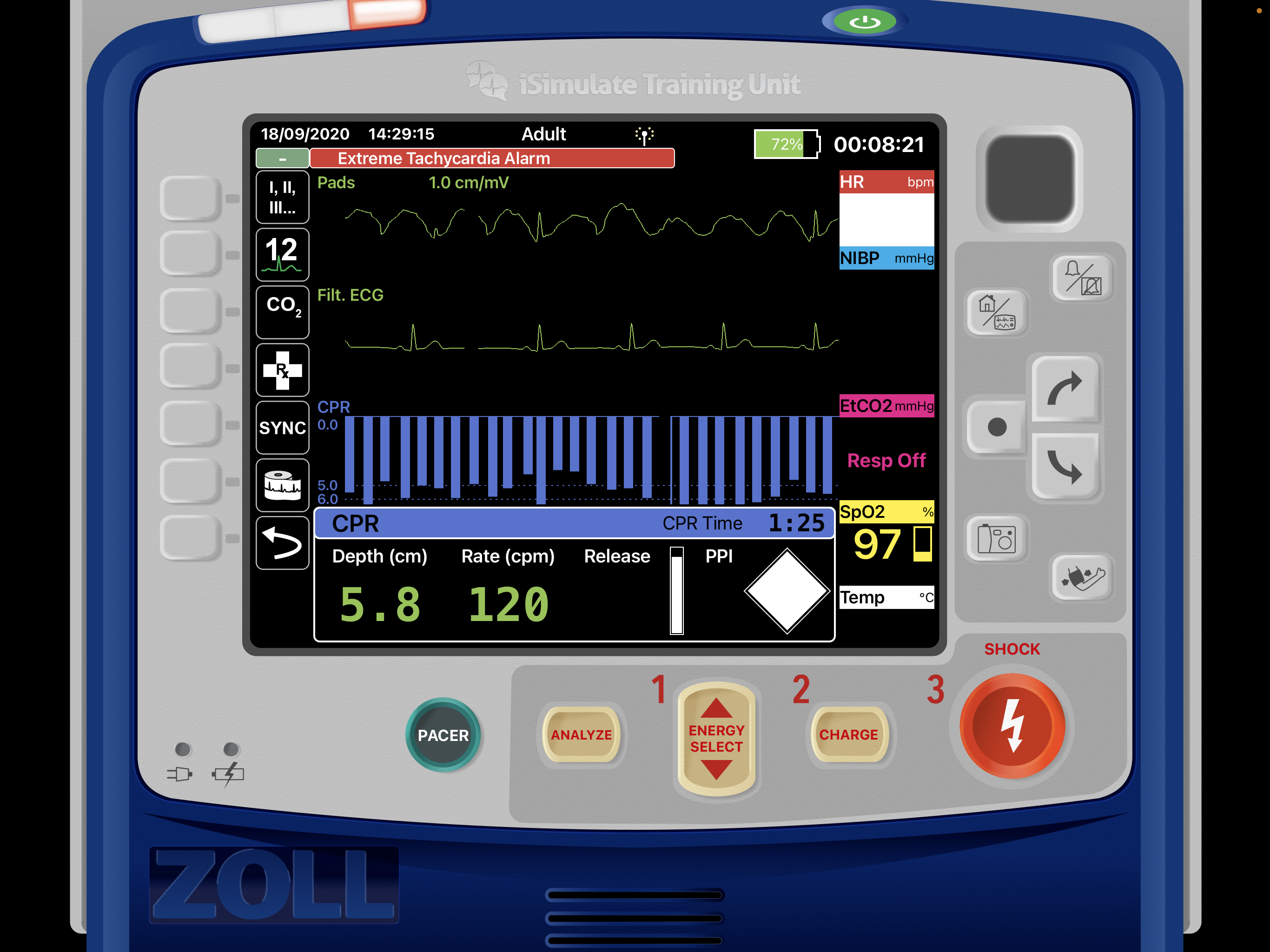 CPR_feedback_Zoll_X.PNG