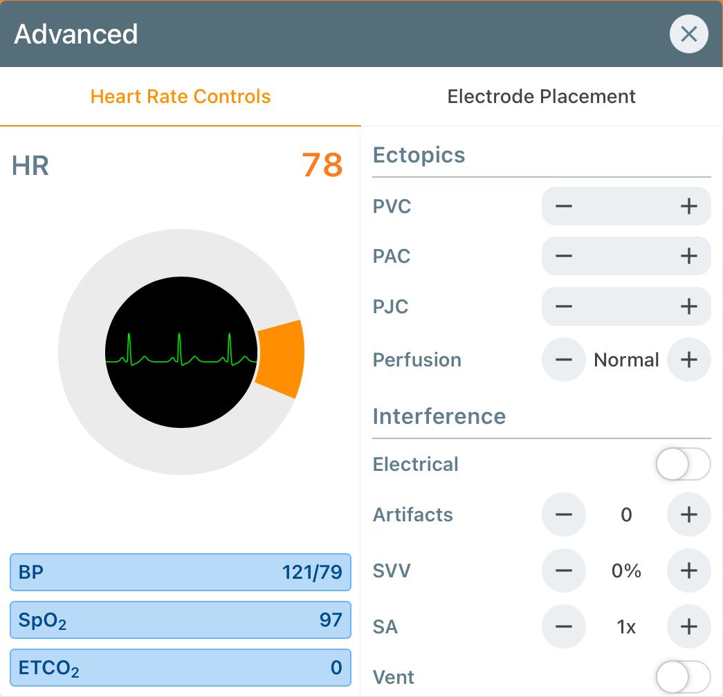 HR_Advanced_Controls_.PNG